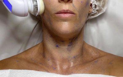 La importancia del peeling en los tratamientos de estética facial